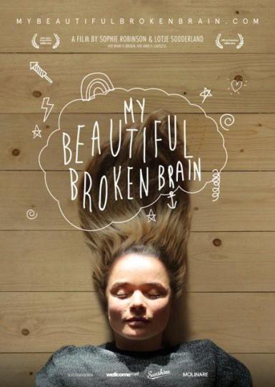 My_Beautiful_Broken_Brain-402931328-large